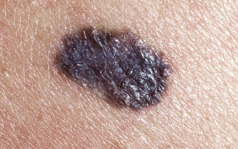 malignant-melanoma