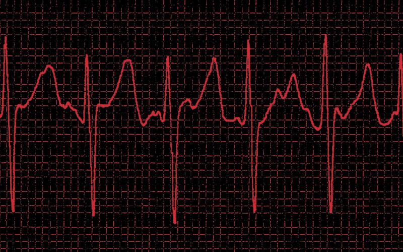 Detecting atrial fibrillation | The Biomedical Scientist