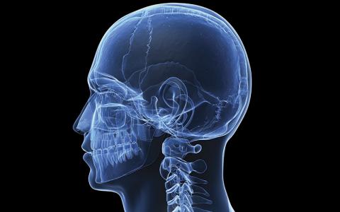 X-ray: Shutterstock