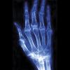 Rheumatoid Arthrithis